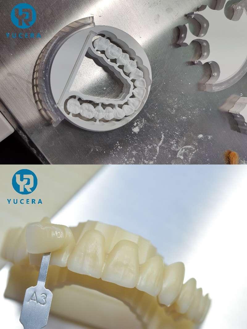 Professionel deying Proces til Dental Zirconia Block Corwn og Brigdes
